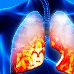 Пневмония у беременных