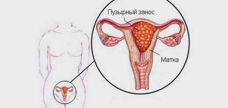 Что такое пузырный занос при беременности причины