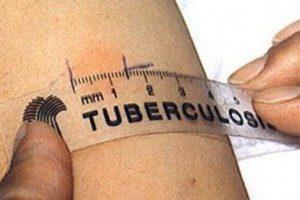 Квантифероновый тест на туберкулез при беременности плюсы