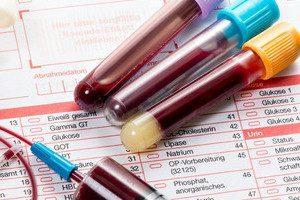 Квантифероновый тест на туберкулез при беременности как проводится