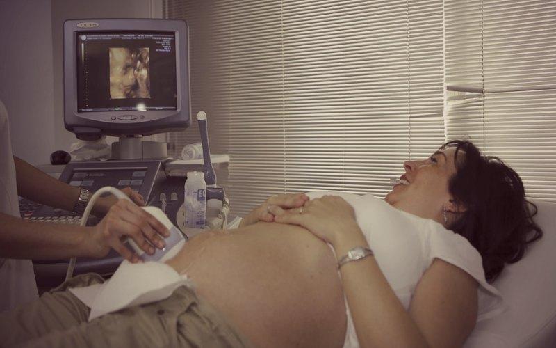 роды при тазовом предлежании плода когда ложиться в больницу