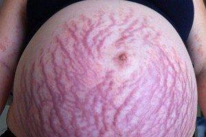 Стрии или растяжки во время беременности причины