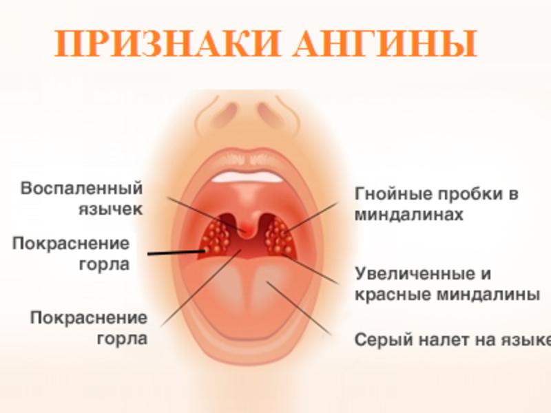 Ангина у беременных последствия